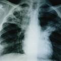 Quand les tuberculeux d'Europe de l'est viennent se faire soigner en France