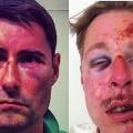 Sylvain et Wilfried, deux hommes agressés parce qu'homosexuels selon tous les médias..