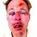 Wilfred, l'homme agressé il y a un an à Paris... soit disant - selon les médias - par des participants à la Manif pour Tous